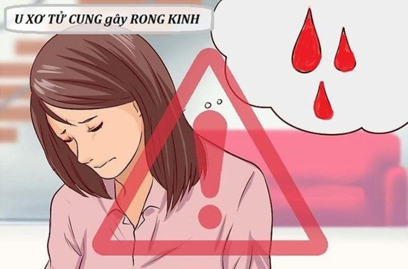 U xơ tử cung có thể gây rong kinh