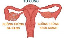 Hội chứng buồng trứng đa nang: Nhận biết triệu chứng và điều trị theo tư vấn của chuyên gia