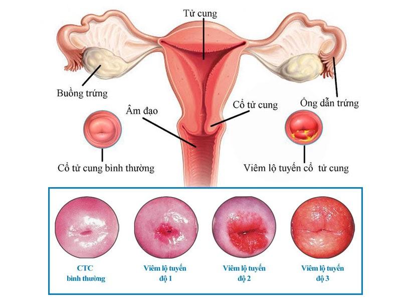 Bệnh viêm lộ tuyến cổ tử cung là bệnh phụ khoa có tỉ lệ bệnh nhân khá cao