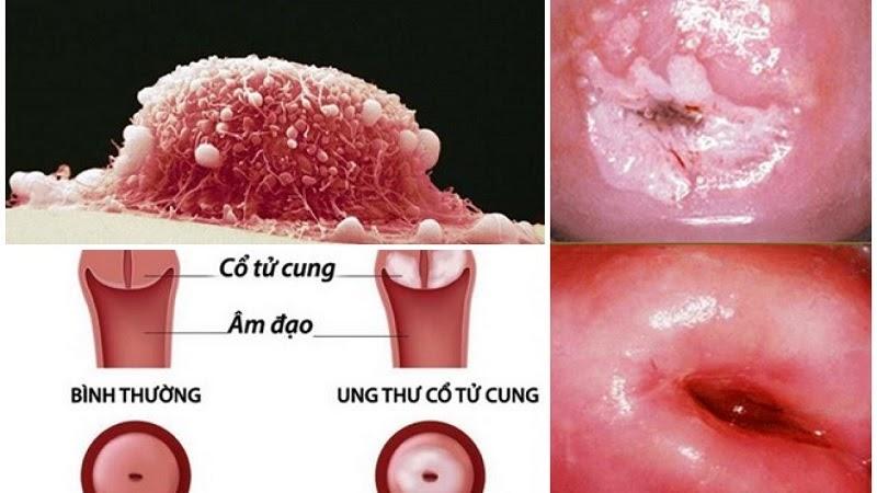 Bệnh có nguy cơ gây ung thư cổ tử cung