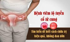 Bệnh viêm lộ tuyến cổ tử cung dễ vô sinh, đừng chủ quan!