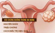 Hội chứng buồng trứng đa nang: Làm sao điều trị dứt điểm, không xâm lấn, không ảnh hưởng sức khỏe?
