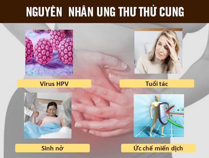 Nguyên nhân ung thư tử cung