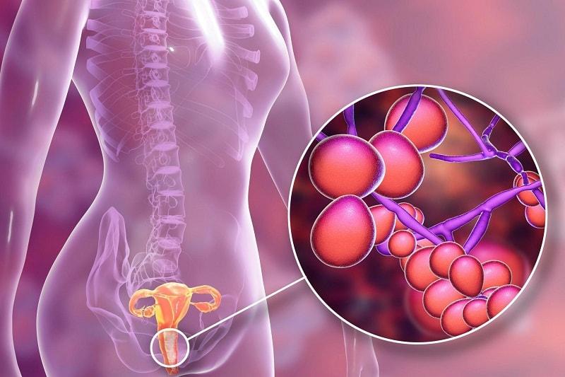 Phác đồ điều trị viêm âm đạo do vi khuẩn gây ra