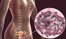 Bệnh viêm âm đạo do gardnerella vaginalis là gì? Làm sao để chữa khỏi?