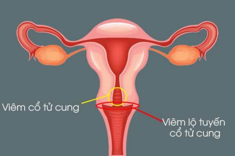 Viêm lộ tuyến cổ tử cung độ 4 chính là giai đoạn 3 của bệnh với biểu hiện nặng nhất