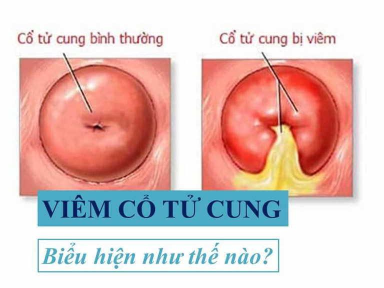 Viêm cổ tử cung là triệu chứng viêm nhiễm tổn thương ở vùng nối giữa âm đạo và tử cung