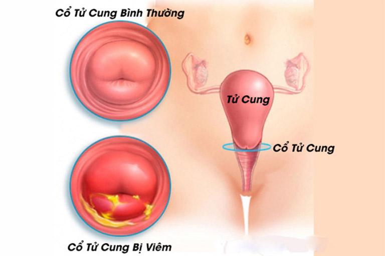 Viêm cổ tử cung có nguy hiểm không?