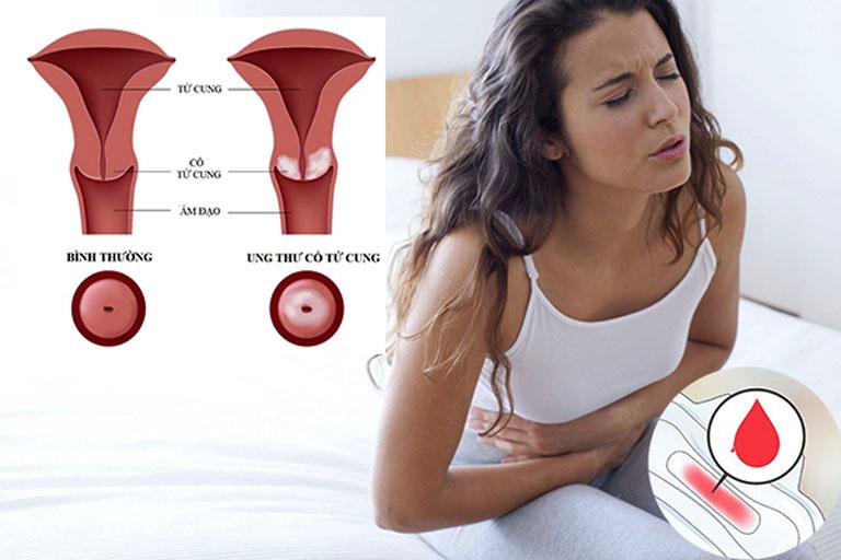 Viêm cổ tử cung có nguy hiểm không? - Làm gia tăng nguy cơ ung thư tử cung