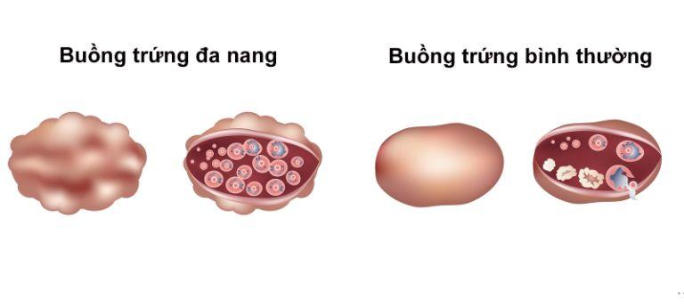 Điều trị buồng trứng đa nang bằng thuốc kích trứng để tăng khả năng mang thai