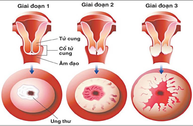 Huyết trắng có mùi hôi tanh là dấu hiệu cảnh báo ung thư cổ tử cung