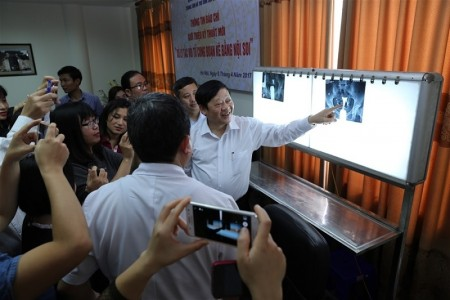 GS.TS Nguyễn Viết Tiến giới thiệu phim chụp Xquang kết quả nội soi trước và sau phẫu thuật của vợ chồng chị Loan và anh Châu