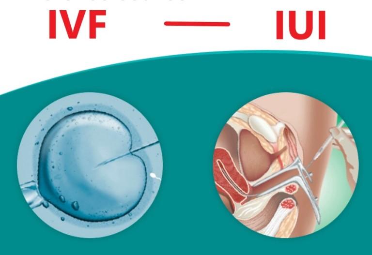 Phương pháp thụ tinh trong ống nghiệm IVF giúp phụ nữ tắc hai bên vòi trứng có thai