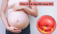 Viêm cổ tử cung khi mang thai có thực sự nguy hiểm? Điều trị như thế nào an toàn nhất?