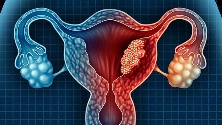Ung thư nội mạc tử cung có thể là một biến chứng nguy hiểm của đa nang buồng trứng