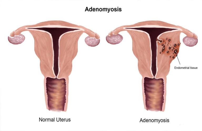 Bệnh lạc nội mạc trong cơ tử cung là gì, có đáng lo ngại?