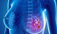 Xét nghiệm máu phát hiện sớm ung thư phổi, vú