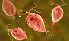 Nhiễm trùng roi âm đạo