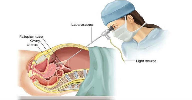 Phương pháp mổ nội soi được áp dụng cho bệnh nhân viêm phần phụ